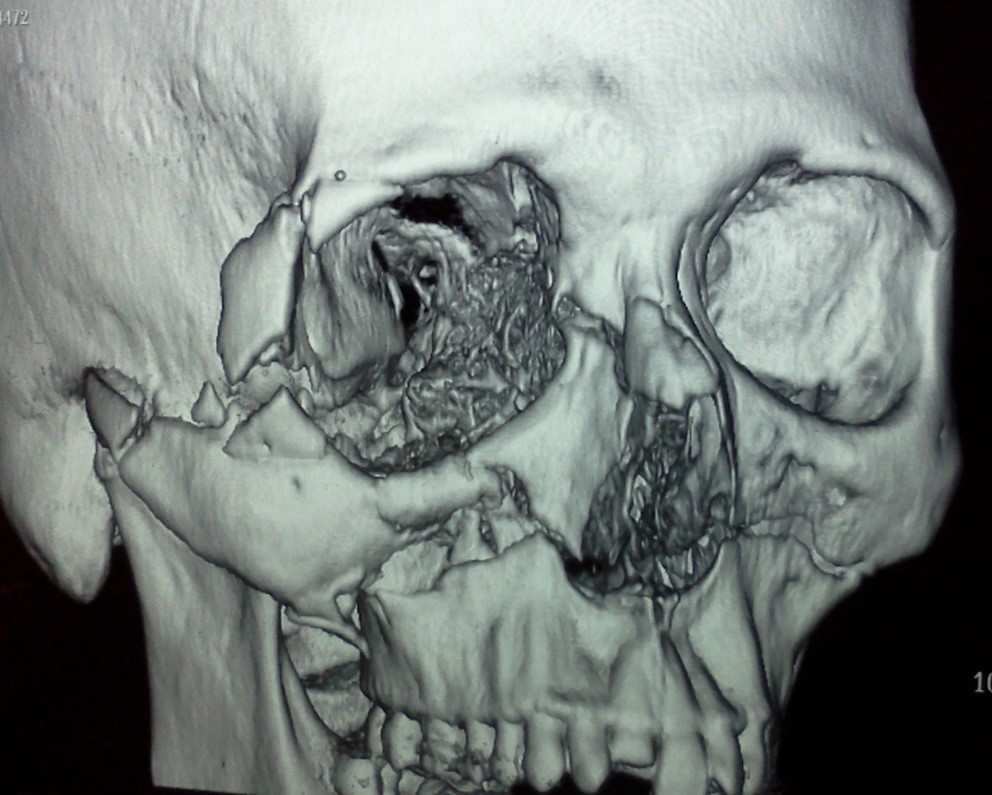 3-D reconstruction CT scan of a patient with a fractured midface, including upper jaw, nose, eye sockets, cheek bone and a front tooth.  Dr Mueller was able to completely reconstruct this patients face using small titanium plates.