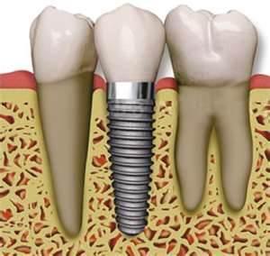 implants6