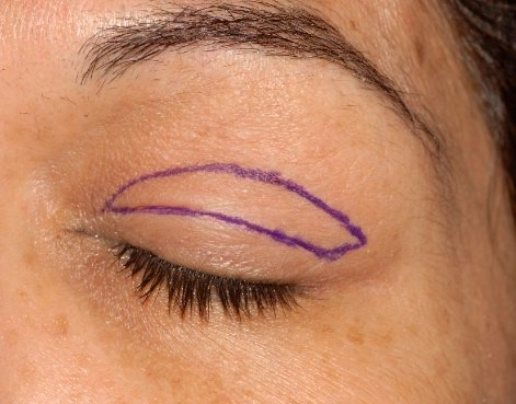 Typical blepharoplasty preoperative markings.