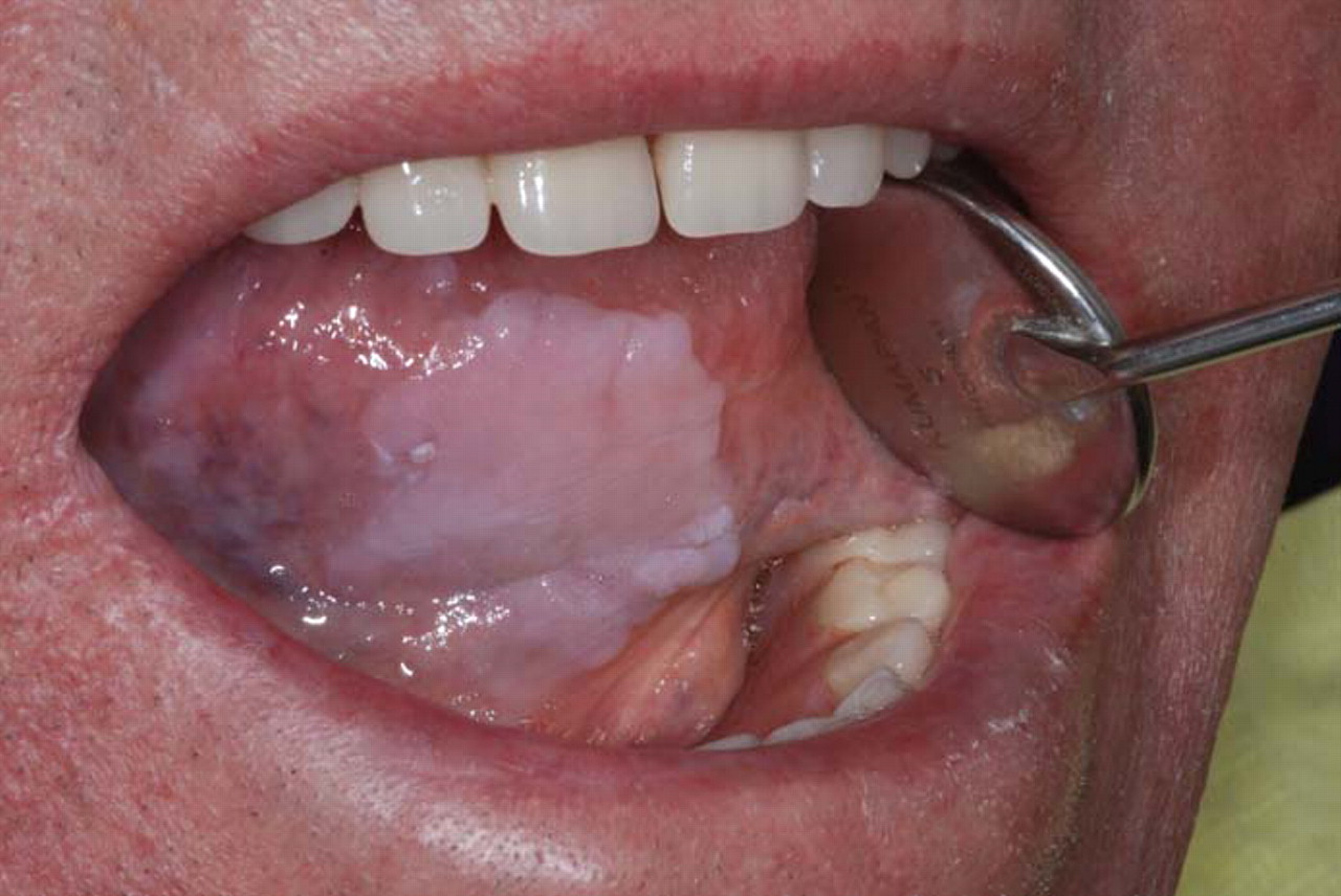 Oral Cancer 3