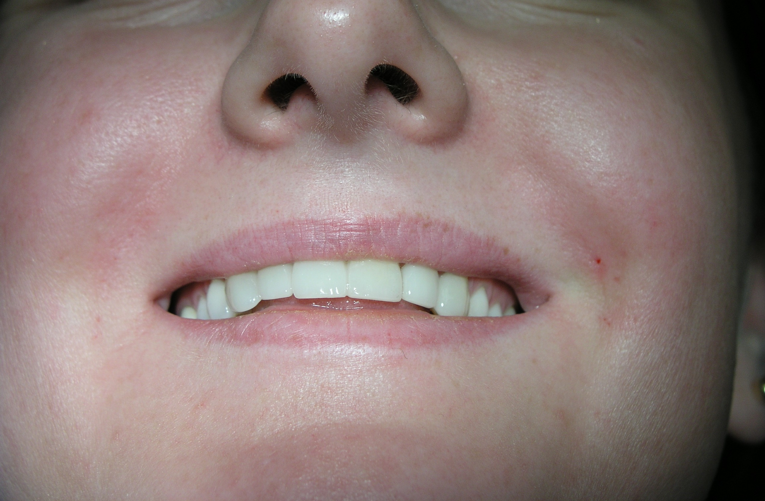 Nasolabial folds after both sides injected with Juvederm Ultra 3