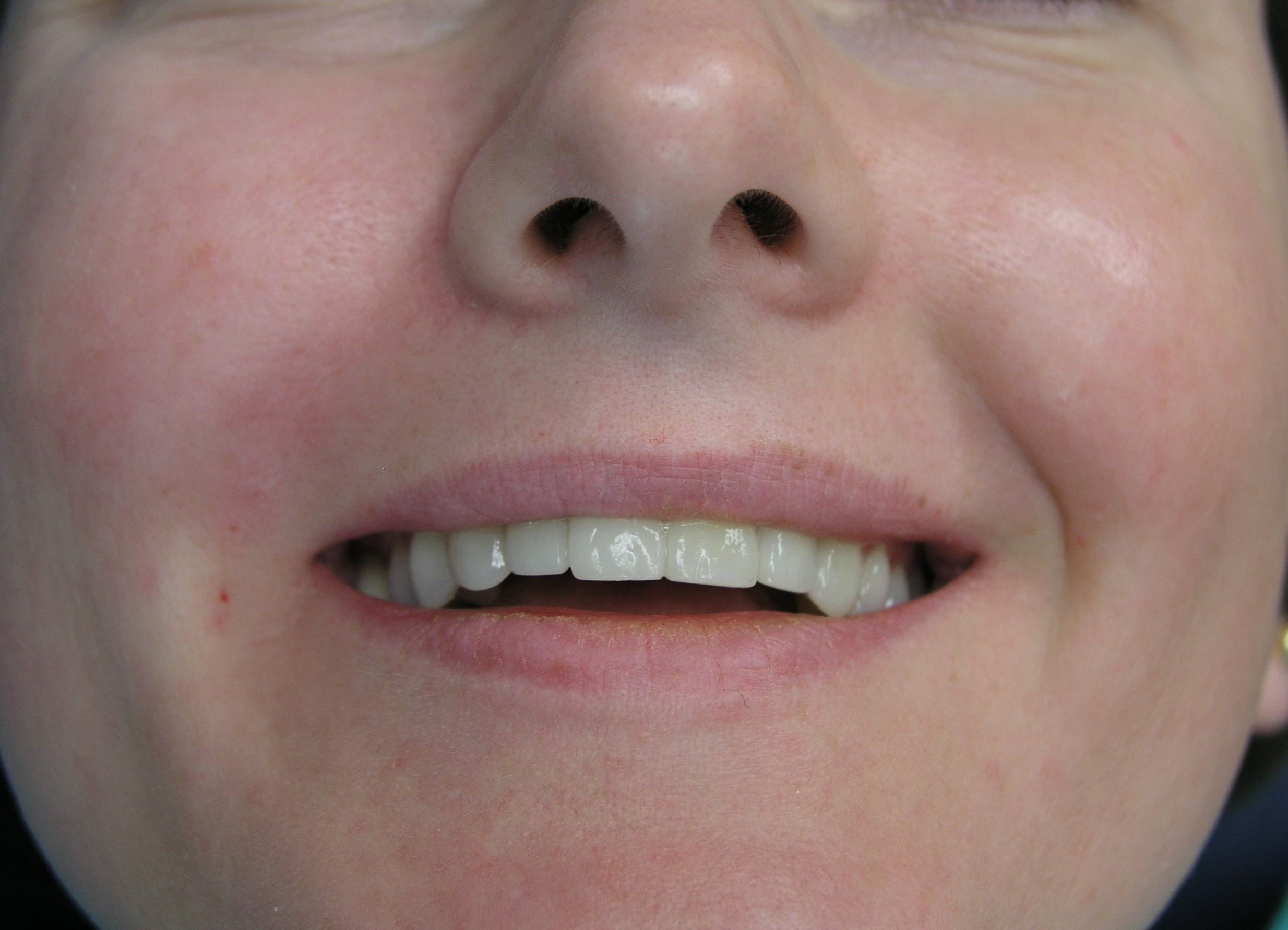 Photo immediately after the right nasolabial fold is injected with Juvederm Ultra 3