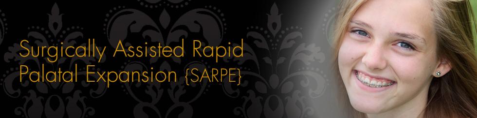SARPE
