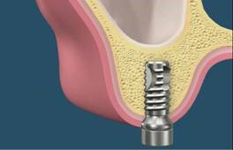 Implants are then placed in the solid bone. Your dentist will then place the crowns.
