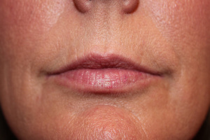 Juvederm Lip Augmentation E before
