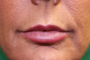Juvederm Lip augmentation E after