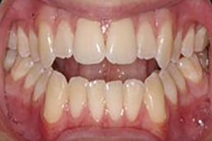corrective jaw surgery before A