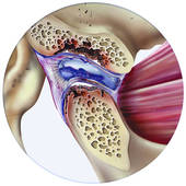 TMJ Degenerative joint disease