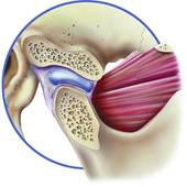 TMJ Normal disc position