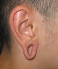Ear Lobe Gauge Defect