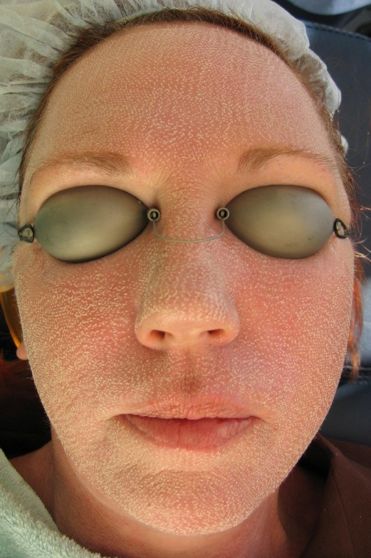 Immediately following Cosmetic Laser Resurfacing