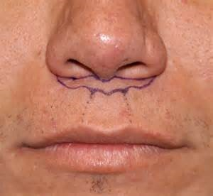 Design of the Lip Lift flap