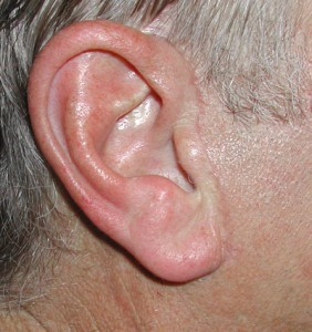 Male facelift scar to preserve the sideburn.