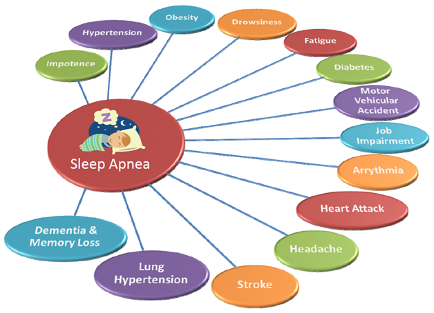 sleep apnea6