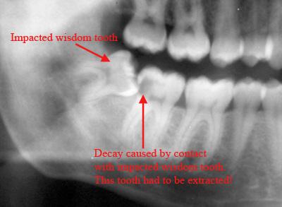 wisdom tooth11